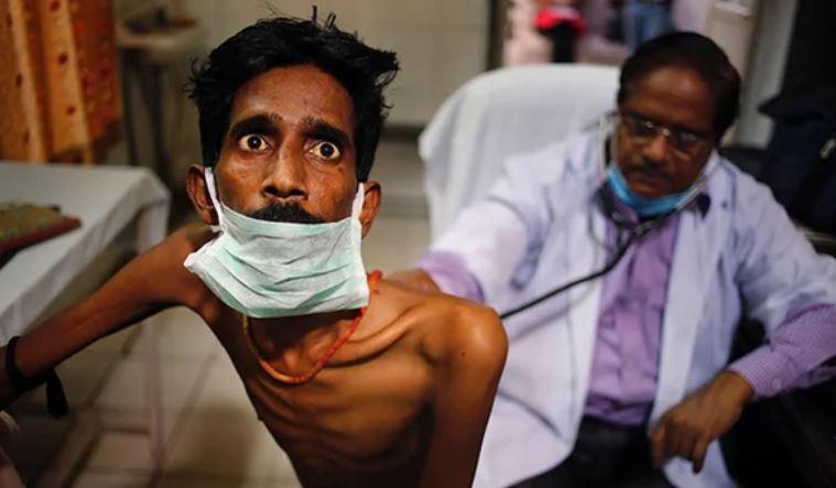 Tuberculose : la maladie infectieuse la plus meurtrière touche 1/4 de la population mondiale